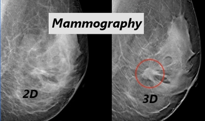 Special Cash Price in May for 3D Mammograms From Sheila R. Veloz Breast Center, a Service of Henry Mayo Newhall Hospital