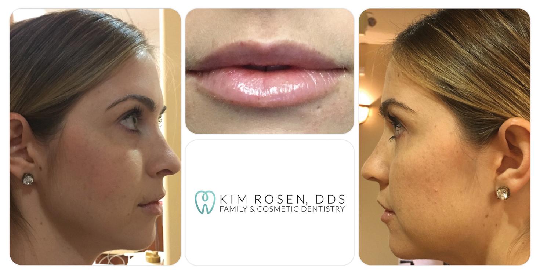 SBG-Kim-Rosen-Before-&-After