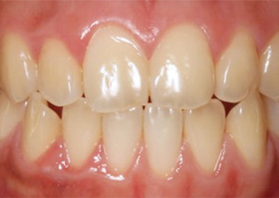 SBG-Noa-Dentalpt_3_before