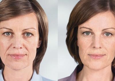 HGG-Advanced-Dermatology